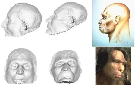 facialReconstruction